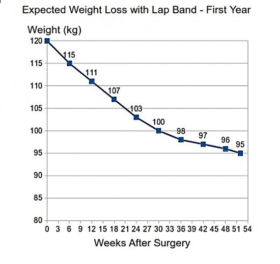 Expected weight loss rate with lap band surgey