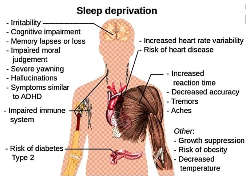 Sleep deprivation has profound and complex effects on the body